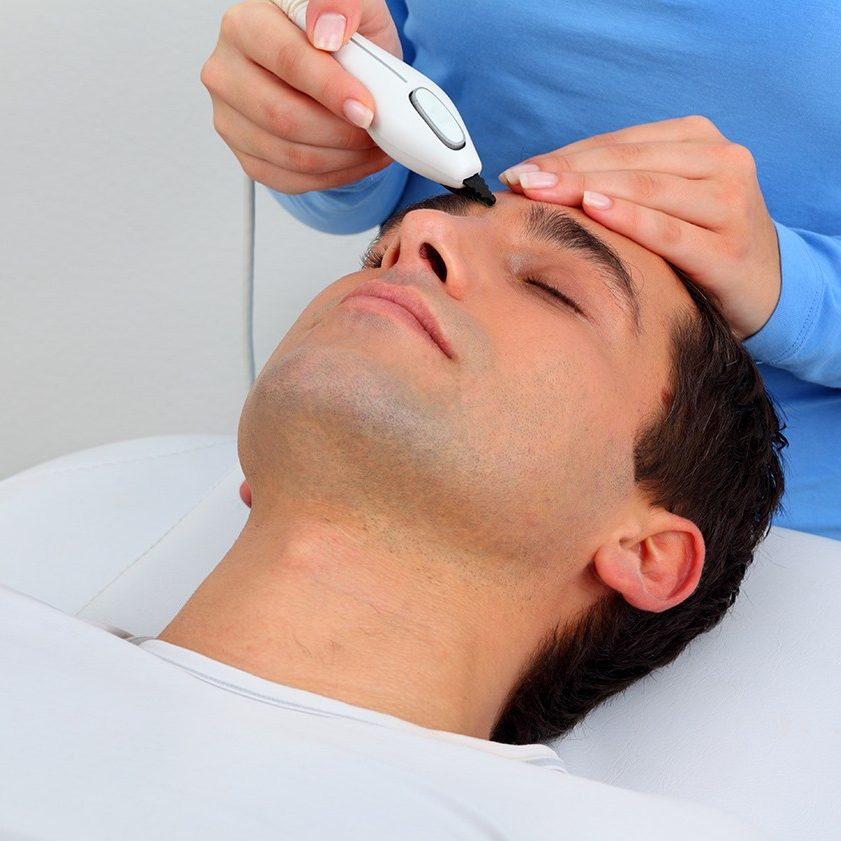 Pulsar IPL Hair Removal centre eyebrow